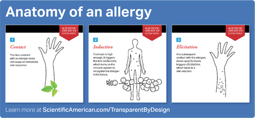 Anatomy of an allergy illustration